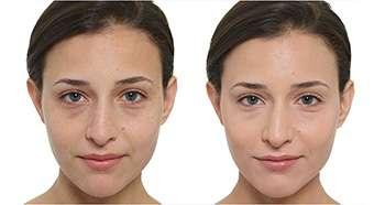 Ламитон тональный крем до и после применения
