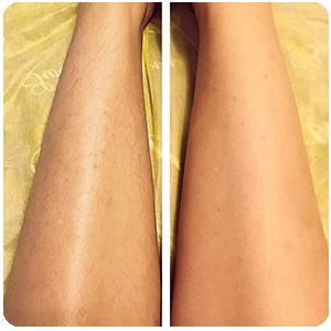 Женские ноги до и после применения depilight