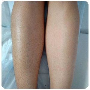 Женские ноги до и после применения фото спрея depilight для депиляции