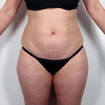 Женщина до применения капсул keto slim для похудения