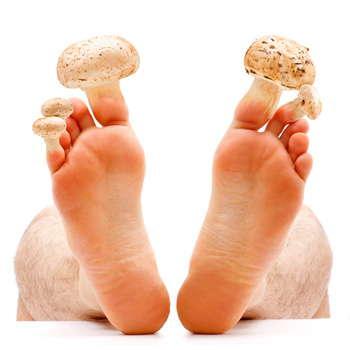 Ноги до применения средства Номидол от грибка