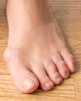 Нога до применения геля Вальгурон
