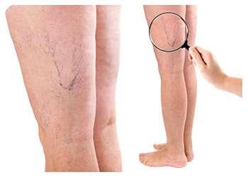 Ноги до применения пенки Вариоль от варикоза