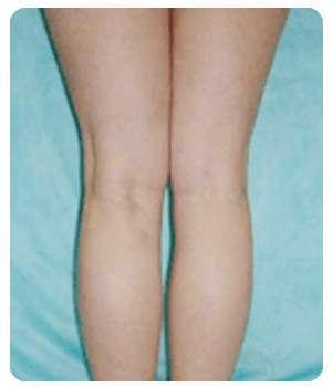 Ноги после применения Варитонуса от варикоза