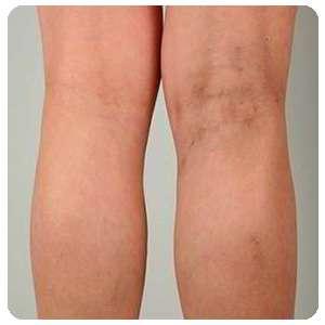 Ноги после применения Вариуса от варикоза