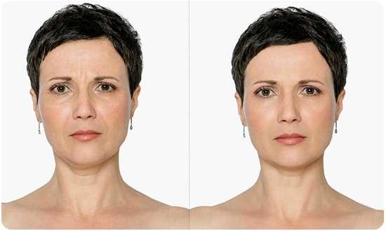 Женщина до и после применения маски Cledbel