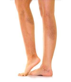 Ноги до применения Флеатон от варикоза