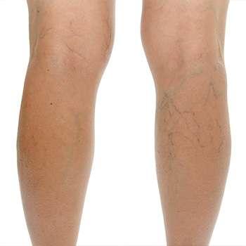 Ноги до применения крема Венорем