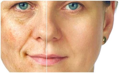 Лицо, до и после использования крем Люмидерм от пигментных пятен