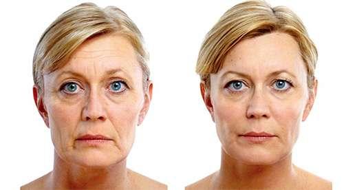 Женщина до и после применения miliskin от морщин
