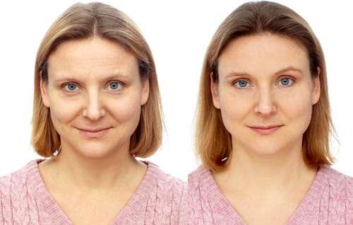 Женщина до и после применения сыворотки для лица Serum