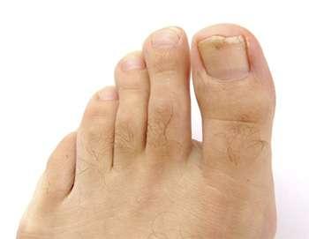Мужская нога до применения масла Стоп Актив