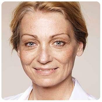 Женщина до применения крема Лифтинг Стик