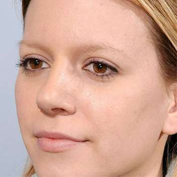 Женщина избавилась от бородавок с помощью средства Паразитокс