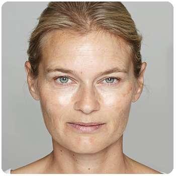 Состояние кожи женщины до применения средства Sienna Lifting