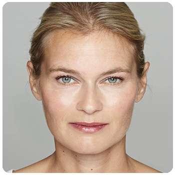 Состояние кожи женщины значительно изменилось благодаря сыворотке Sienna Lifting