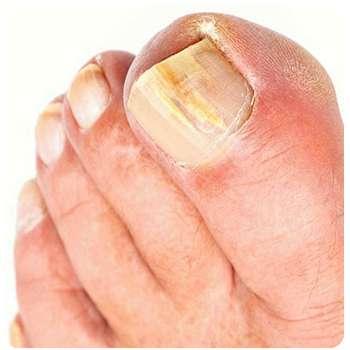 Состояние ногтей до применения Тинедола от грибка