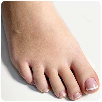 Состояние ногтей после применения Тинедола от грибка