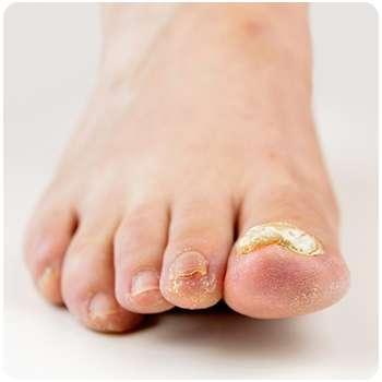 Грибок ноги до применения средства Экзотерил