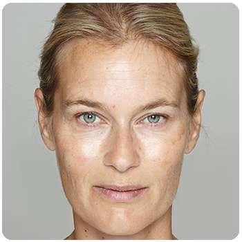 Лицо женщины до применения крема Adapalex