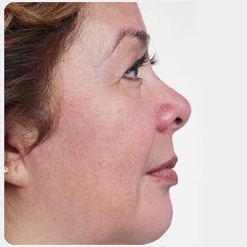 Женщина избавилась от пигментации на лице с помощью маски Laminary