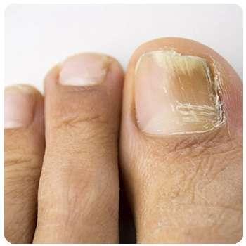 Состояние ногтей женщины до применения Микодина