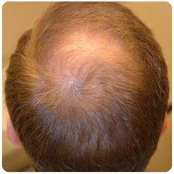 Состояние волос мужчины до применения средства Maxmane