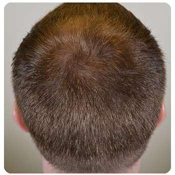Волосы мужчины отросли с помощью маски Maxmane