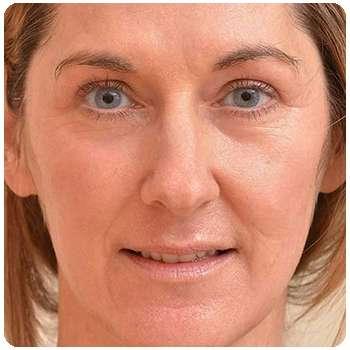 Женщина омолодила лицо с помощью средства Perfectskin.