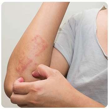 Состояние кожи до применения крема Псориофорт