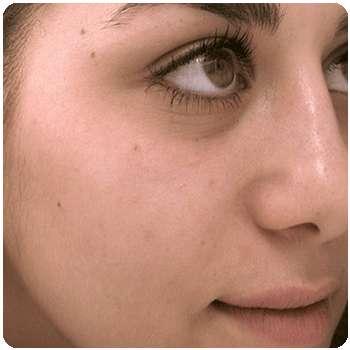 Девушка улучшила состояние кожи лица благодаря средства Algonika.