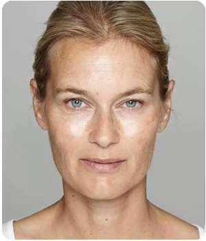 Женщина до применения сыворотки от морщин Био Филлер.