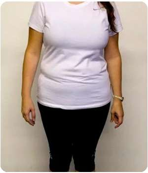 Женщина до применения капсул для похудения Dream Tonus.