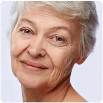 Женщина до применения сыворотки от морщин Inno Gialuron.