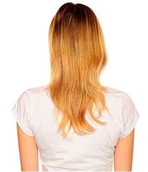 Женщина до применения таблеток для волос Профолан.