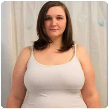 Женщина до применения капсул для похудения Stop Weight.