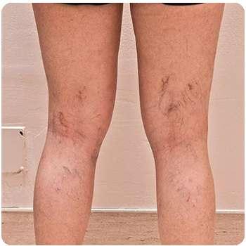 Женщина до применения крема для ног Varikosette.