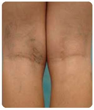 Женщина до применения геля VenaHeal от варикоза.