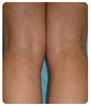 Вены на ногах после курса лечения биогелем VenaHeal.