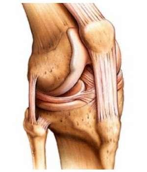 Благодаря средству Артрофикс для суставов колено пришло в норму.