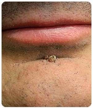 Мужчина до применения капель Ретоксин от паразитов.