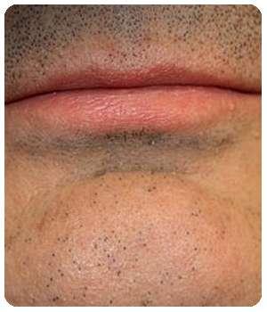 Мужчина избавился от бородавки благодаря средству Ретоксин.