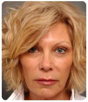 Женщина стала выглядеть моложе благодаря крему Rechiol.