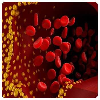 Холестерин в крови до применения препарата Артериале.