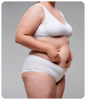 Лишний вес у девушки до применения комплекса Тонуслим.