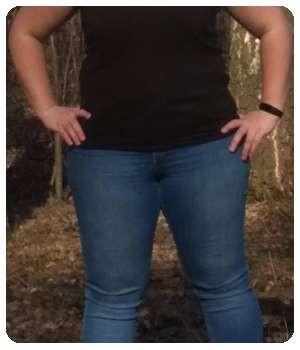 Лишний вес у девушки до применения таблеток Кето Экстра.