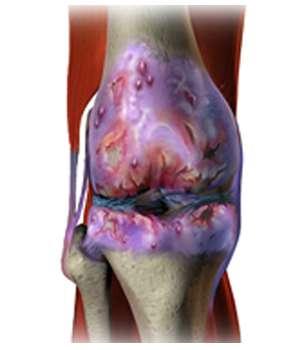 Состояние коленного сустава до применения капсул Flexedil.