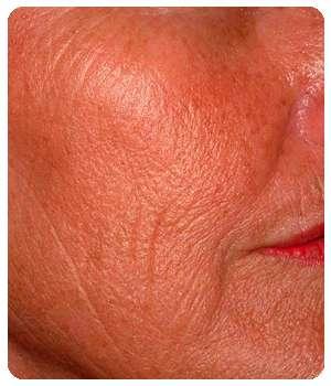 Состояние кожи лица до применения крема Гиалурин.