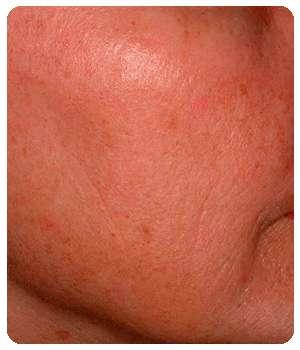 Благодаря средству Гиалурин состояние кожи улучшилось.