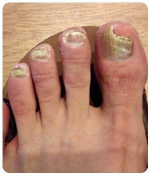 Состояние ногтей до применения крема Бакторецил.